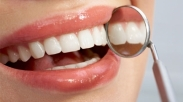 Nggak Perlu Ke Dokter, Putihkan Gigi Dengan 5 Cara Rumahan Super Murah Ini Aja