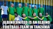 Laga El Clasico Dukung Para Albino di Tanzania