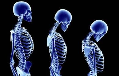 Kenali Tanda Osteoporosis Sejak Sekarang