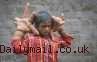 Kelainan Langka Buat Bocah India Ini Miliki Tangan Raksasa