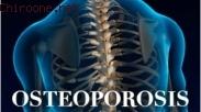 Say No to Osteoporosis! Jauhi Kebiasaan ini