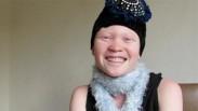 Ditolak Karena Albino Justru Hantar Gadis Afrika Ini Jadi Berkat Bagi Orang Lain