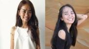 Tubuhnya Dipenuhi Tahi Lalat, Gadis Malaysia Ini Tetap Pede Ikut Kontes Kecantikan