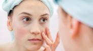 Cewek-cewek Harus Tahu, 9 Ciri Ini Indikasikan Kamu Positif Kena Lupus