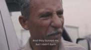 Tiga Kali Dibakar Hidup-hidup Oleh ISIS, Pria Ini Mengaku Selamat Karena Yesus