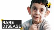 10 Penyakit Langka Ini Muncul di Berbagai Negara, Benarkah Pertanda Kiamat? (Bagian 1)