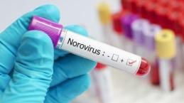 Bukan Virus Baru, Begini Sejarah Munculnya Norovirus dan Cara Pencegahannya…
