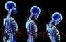 Vitamin D Rupanya Tak Mempan Bagi Osteoporosis